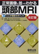 正常画像と並べてわかる頭部MRI 改訂版