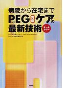 病院から在宅までPEG〈胃瘻〉ケアの最新技術