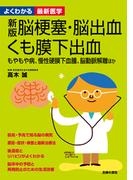 新版 脳梗塞・脳出血・くも膜下出血―よくわかる最新医学シリーズ