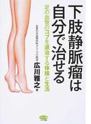 下肢静脈瘤は自分で治せる 足の血管のコブを退治する体操と生活