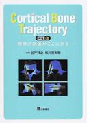 Cortical Bone Trajectory〈CBT〉法 理想の軌道がここにある