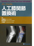 パーフェクト人工膝関節置換術