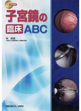 子宮鏡の臨床ABC