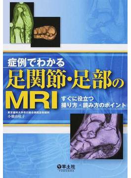 症例でわかる足関節・足部のMRI すぐに役立つ撮り方・読み方のポイント