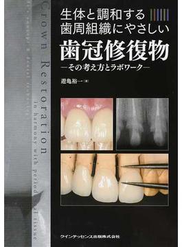 生体と調和する歯周組織にやさしい歯冠修復物 その考え方とラボワーク