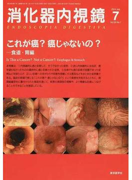 消化器内視鏡 Vol.26No.7(2014July) これが癌?癌じゃないの? 食道・胃編