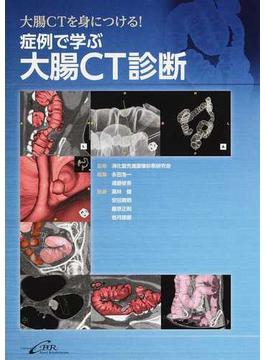 大腸CTを身につける!症例で学ぶ大腸CT診断