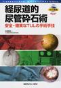 経尿道的尿管砕石術