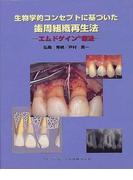 生物学的コンセプトに基づいた歯周組織再生法 エムドゲイン療法