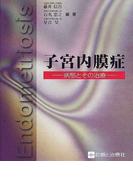 子宮内膜症 病態とその治療