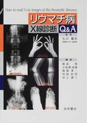 リウマチ病X線診断Q&A