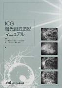 ICG蛍光眼底造影マニュアル