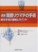図説関節リウマチの手術 基本手技の展開とポイント