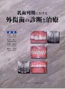 乳歯列期における外傷歯の診断と治療
