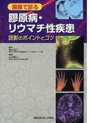 画像で診る膠原病・リウマチ性疾患 読影のポイントとコツ