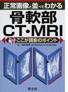 正常画像と並べてわかる骨軟部CT・MRI (ここが読影のポイント)