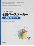 イラストで学ぶ心臓ペースメーカーStep by Step