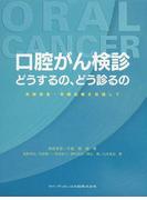 口腔がん検診どうするの、どう診るの 早期発見・早期治療を目指して