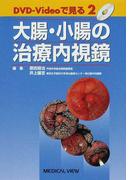 大腸・小腸の治療内視鏡 (DVD−Videoで見る)