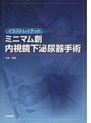 イラストレイテッドミニマム創内視鏡下泌尿器手術