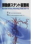 頚動脈ステント留置術 Carotid Artery Stenting(CAS)のすべて