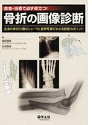 骨折の画像診断 救急・当直で必ず役立つ! 全身の骨折分類のシェーマと症例写真でわかる読影のポイント