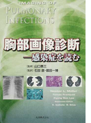 胸部画像診断 感染症を読む