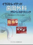 イラストレイテッド歯周外科アドバンステクニック 再生療法とインプラントに挑む