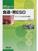食道・胃ESD ITナイフによるESDの実際 (症例で身につける消化器内視鏡シリーズ)