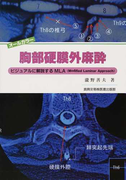 胸部硬膜外麻酔 ビジュアルに解説するMLA(Modified Laminar Approach)