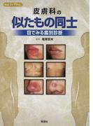 皮膚科の似たもの同士 目でみる鑑別診断 (ViDセレクション)