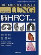 肺HRCT