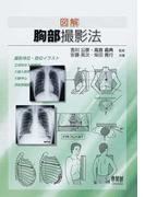 図解胸部撮影法