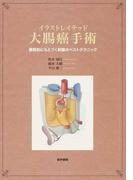 イラストレイテッド大腸癌手術 膜解剖にもとづく剝離のベストテクニック