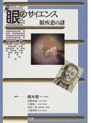 眼のサイエンス 眼疾患の謎