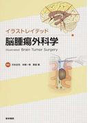 イラストレイテッド脳腫瘍外科学