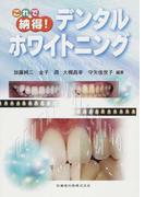 これで納得!デンタルホワイトニング Dental Whitening 101