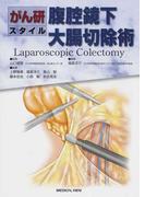 腹腔鏡下大腸切除術 がん研スタイル