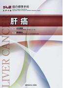 肝癌 (がん研スタイル癌の標準手術)