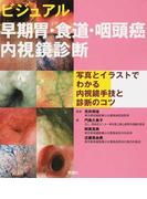 ビジュアル早期胃・食道・咽頭癌内視鏡診断 写真とイラストでわかる内視鏡手技と診断のコツ