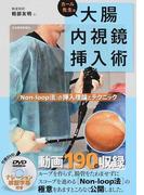 カール先生の大腸内視鏡挿入術 〈Non‐loop法〉の挿入理論とテクニック