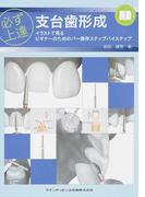 必ず上達支台歯形成 イラストで見るビギナーのためのバー操作ステップバイステップ