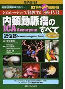 内頚動脈瘤ICA Aneurysmのすべて シミュレーションで経験する手術・IVR 92本のWEB動画付き 電子版付き Premium 近位部〈cavernous‐paraclinoid〉 (脳神経外科速報EX 部位別に学ぶ脳動脈瘤シリーズ)