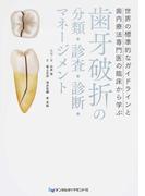 歯牙破折の分類・診査・診断・マネージメント 世界の標準的なガイドラインと歯内療法専門医の臨床から学ぶ