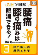 名医が図解! 腰痛・膝の痛みは解消できる! (3) 膝の痛みの原因と対策(impress QuickBooks)