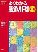 よくわかる脳MRI第3版(画像診断 別冊 KEY BOOK)