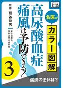 名医がカラー図解! 高尿酸血症・痛風は予防できる! (3) 痛風の正体は?(impress QuickBooks)