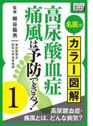 名医がカラー図解! 高尿酸血症・痛風は予防できる! (1) 高尿酸血症・痛風とは、どんな病気?(impress QuickBooks)