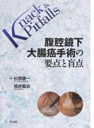 腹腔鏡下大腸癌手術の要点と盲点 (Knack & Pitfalls)