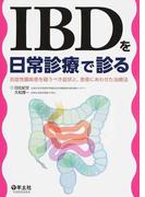 IBDを日常診療で診る 炎症性腸疾患を疑うべき症状と、患者にあわせた治療法